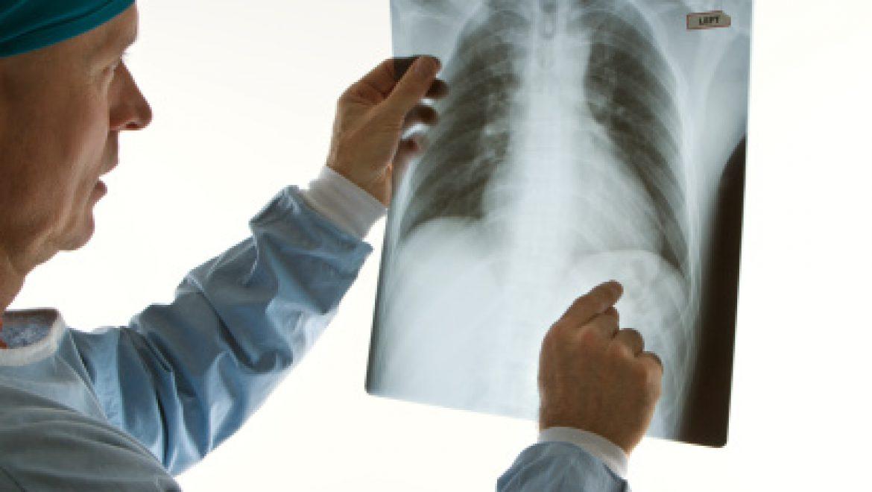 מקרה קצר: מצוקה נשימתית ואיבוד משקל אצל בן 16 עם תולדות עבר של דלקת הלבלב (CME).