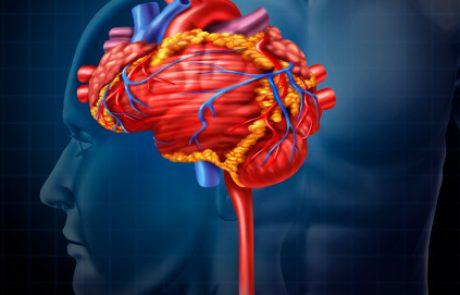 הנחיות עדכניות לניהול מוקדם של חולים עם אירוע מוחי איסכמי: סקירת עדכון מה-JAMA (שאלת CME)